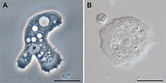 https://cdn.allaboutvision.com/images/acanthamoeba-parasite-330x165.jpg